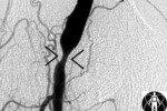 Двойная антиагрегантная терапия может увеличить риск геморрагической трансф ...