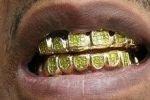 Дантисты предрекают возвращение моды на золотые зубы