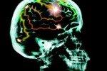 Расшифрован геном раковой клетки, атакующей мозг