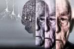 Болезнь Альцгеймера предложено лечить инсулином