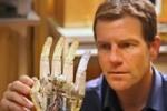 Канадский ученый работает над созданием уникального протеза руки