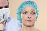 Пациенты клиник пластической хирургии страдают дисморфофобией, установили у ...