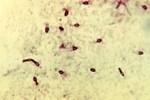 Древнейшие бактерии позволят справиться с твердыми опухолями