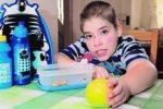 Редкий синдром заставляет мальчика испытывать нечеловеческий голод