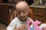 Еще один прорыв науки: у больных прогерией появилась надежда