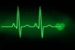 Возникновение и лечение аритмии