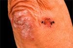 Заболевание кожи - предвестник серьезных болезней органов