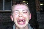 Если вы рано начали терять зубы, долгожителем стать вряд ли сможете