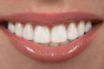 Продолжаются поиски профилактики зубных проблем